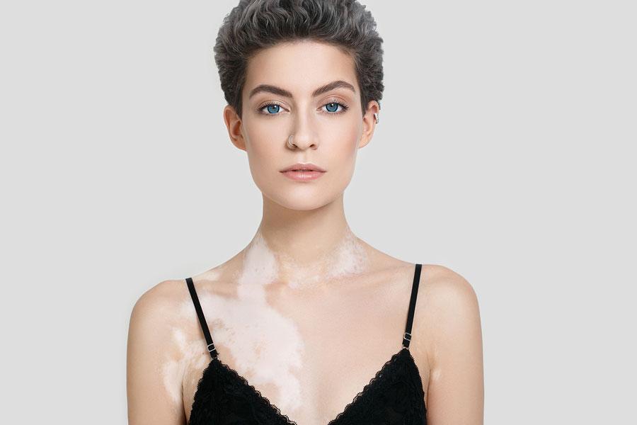 Vitiligo Full Body